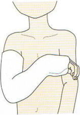 腕骨 骨折 上 上 顆 上腕骨外顆骨折について
